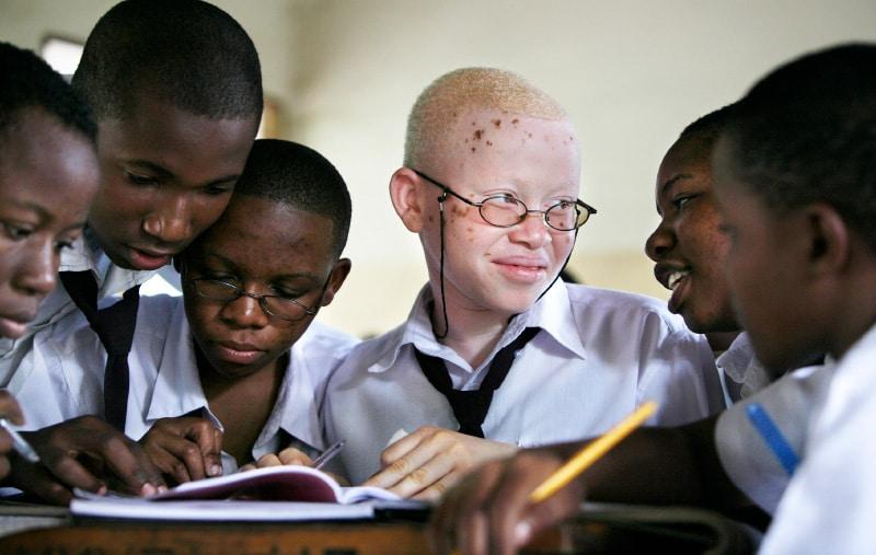 jonge Afrikaanse leerlingen, waarvan één met albinisme