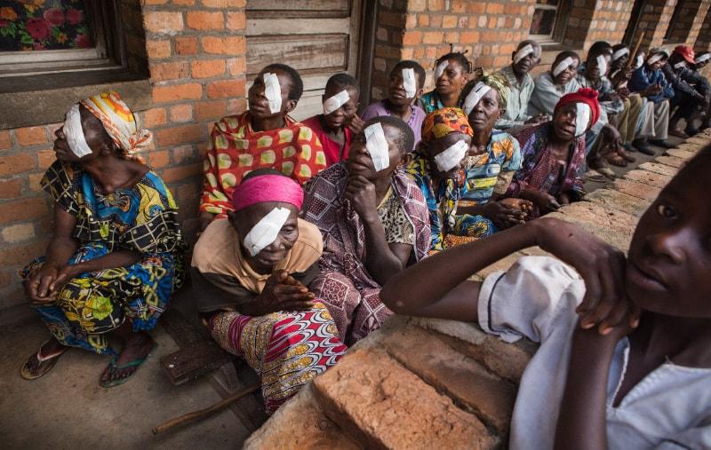 patiënten met oogverband in Afrikaanse ziekenhuis - patients avec pansement oculaire dans un hôpital africain
