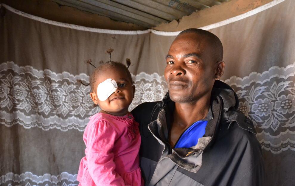 Afrikaanse vader met peuter op de arm na cataractoperatie - père africain avec sa toute-petite au bras après son opération de la cataracte