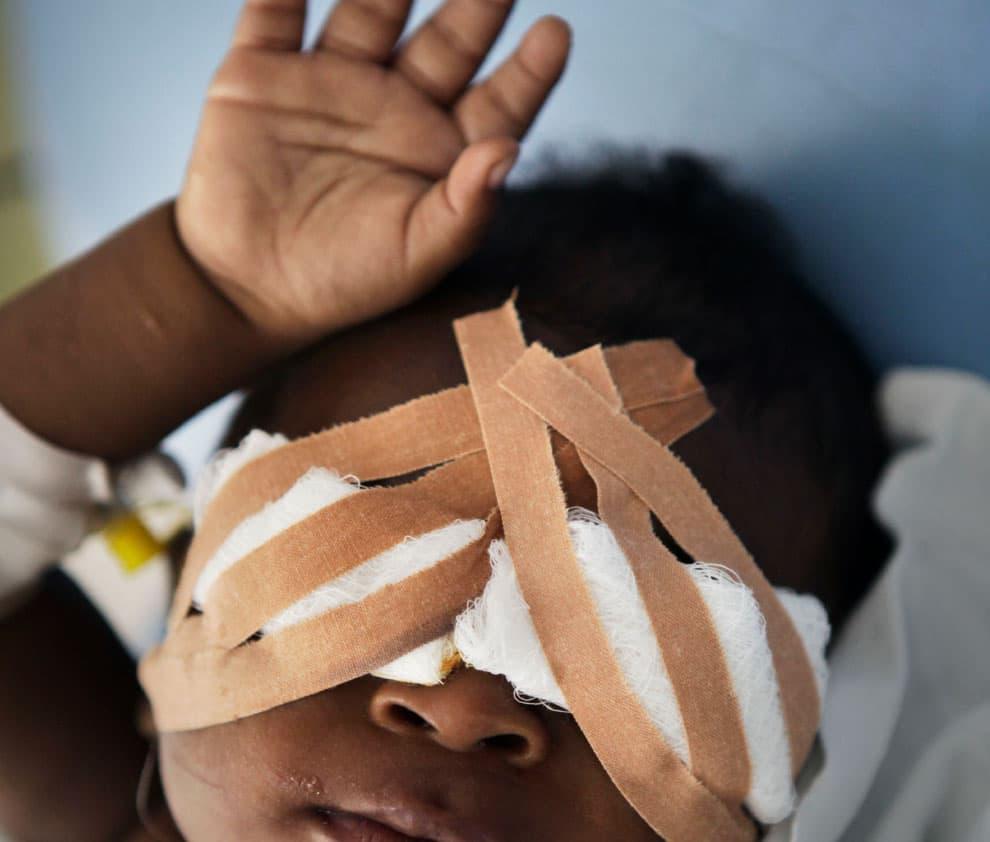 Afrikaanse baby met oogverband
