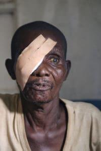 Grootvader met oogverband op het rechteroog
