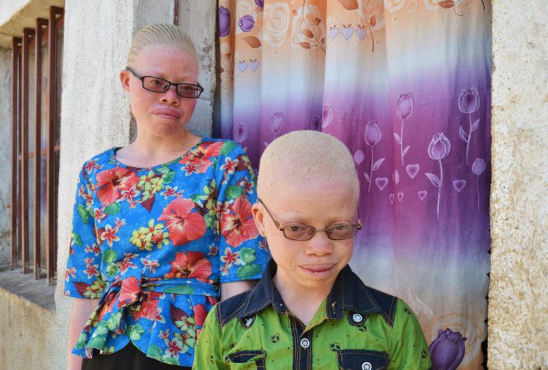 Wereld Albinisme dag: op de schoolbanken met Justin en Nathalie