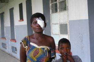 Mweme Chabu en haar dochter na de operatie