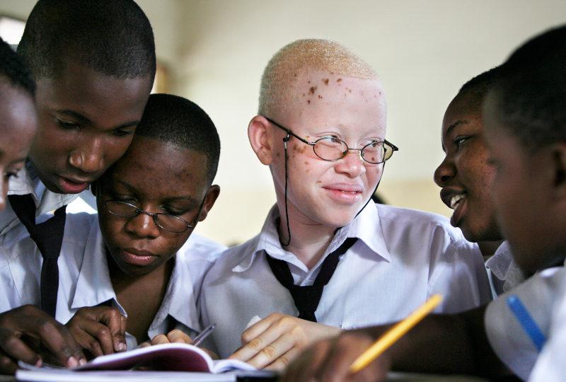 Journée mondiale de l'albinisme
