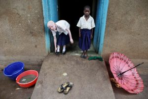 Un enfant atteint d'albinisme et son camarade de classe