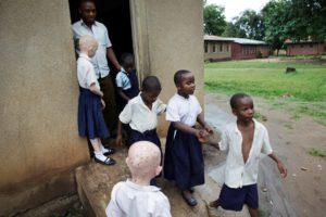 blindenschool met kinderen met albinisme