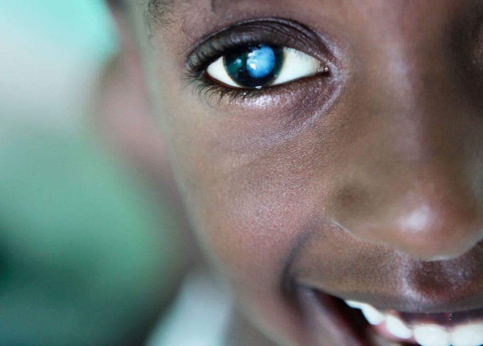 Enfant africain atteint de cataracte